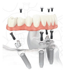 denture implants with a Portland dentist Clackamas OR