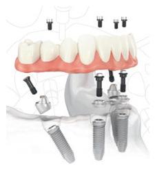 denture implants with a Portland dentist Clackamas OR