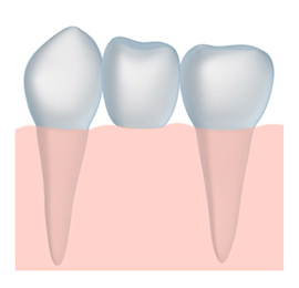 dental bridge and tooth crown dentistry with a Portland dentist Clackamas OR