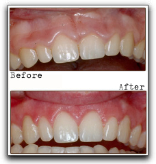 Not Happy With Your Gums? Ask About Contouring In Clackamas