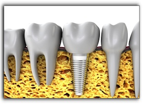 Gresham tooth implants