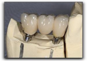 how a dental crown is made Clackamas