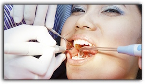 general dentistry Gresham