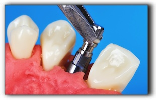 dental implant cost Gresham