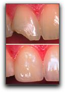 Dental Crowns at Brookside Dental in Clackamas