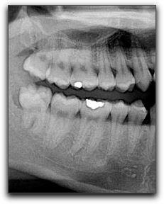 Wisdom Teeth And Your Clackamas Dentist