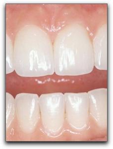 Clackamas fast teeth whitening